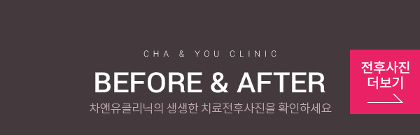 cha & you clinic BEFORE & AFTER